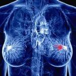 Cancro al seno, da Udine parte la svolta nella ricerca per il vaccino
