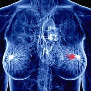 Una donna su 3 si ammala di cancro al seno, un convegno a Udine per il Bra Day